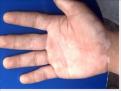 男性手部患上白癜风怎么治疗